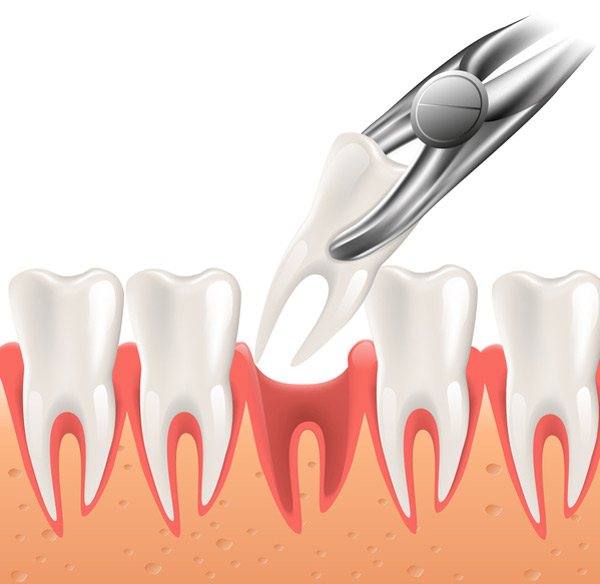 Illustrated diagram of simple tooth extraction procedure at Brian K. Rounds, DDS