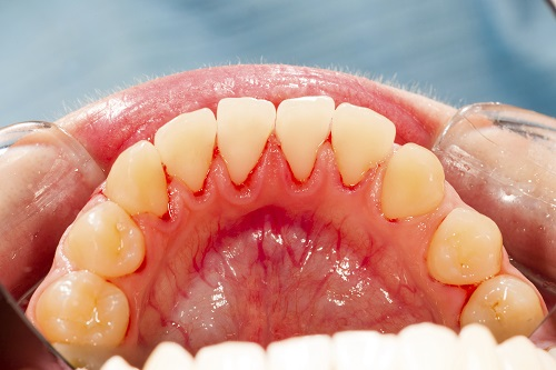 Are Gums Damaged from Gum Disease Repairable?